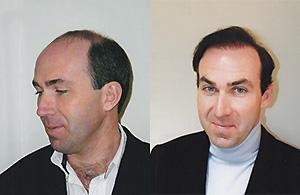 Greffe de cheveux Homme 44 ans
