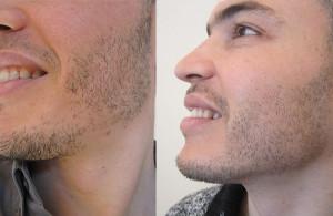 Résultat après une greffe de barbe