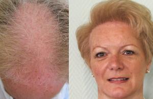 Greffe de cheveux chez une femme de 52 ans
