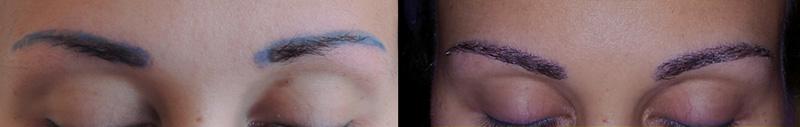greffe des sourcils