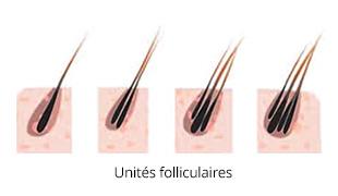 tarif pour greffe de cheveux avec prix par implant capillaire. Black Bedroom Furniture Sets. Home Design Ideas