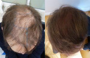 Greffe de cheveux homme de 26 ans