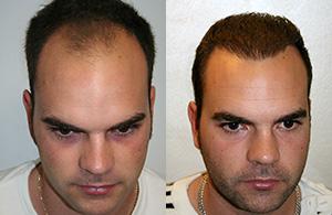 Greffe de cheveux chez un homme jeune