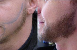 Greffe de barbe chez un jeune homme