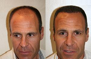 Greffe de cheveux chez un homme de 45 ans