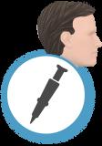 technique_greffe_cheveux_fue_new_dense